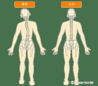「前後から見た背骨の歪みを整える」イメージ
